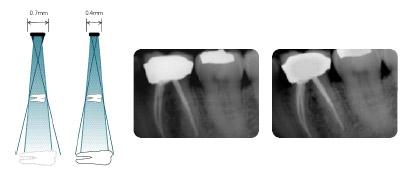 Аппарат дентальный рентгеновский Preva-DC настенный